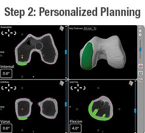 Personalized Planning